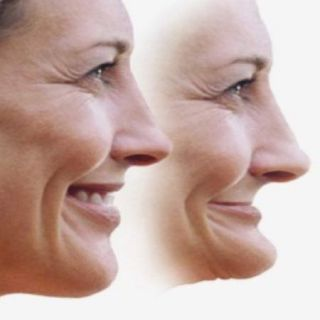 Nuneaton Dentures - Facial Support